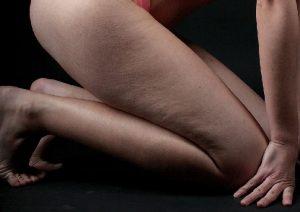 Jak pozbyć się cellulitu